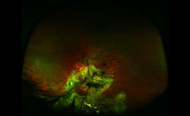 Retinal vasoproliferative tumour