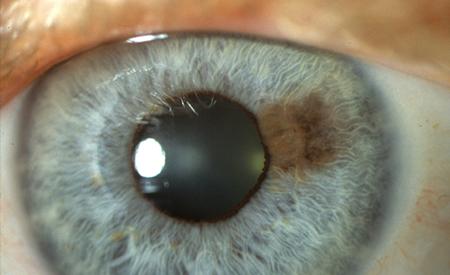 iris tumor