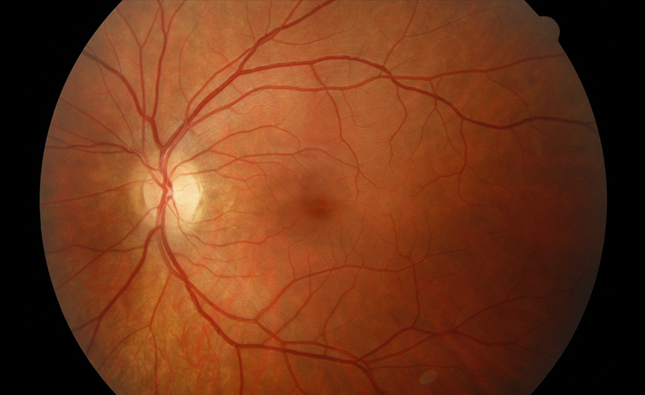 normal retina and optic nerve